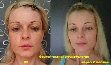 Омоложение лица при помощи бесконтактной косметологии