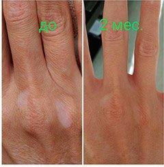 Омоложение рук при помощи бесконтактной косметологии